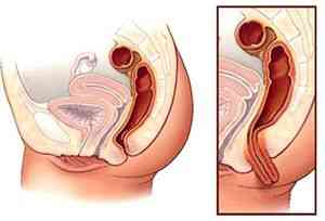 Увеличивается ли живот при кисте яичника 23