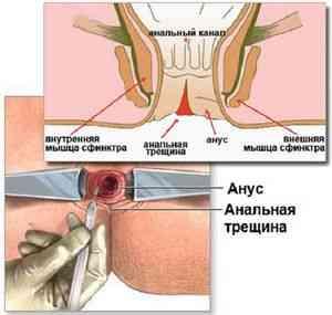 Фото трещина заднего прохода лечение у детей